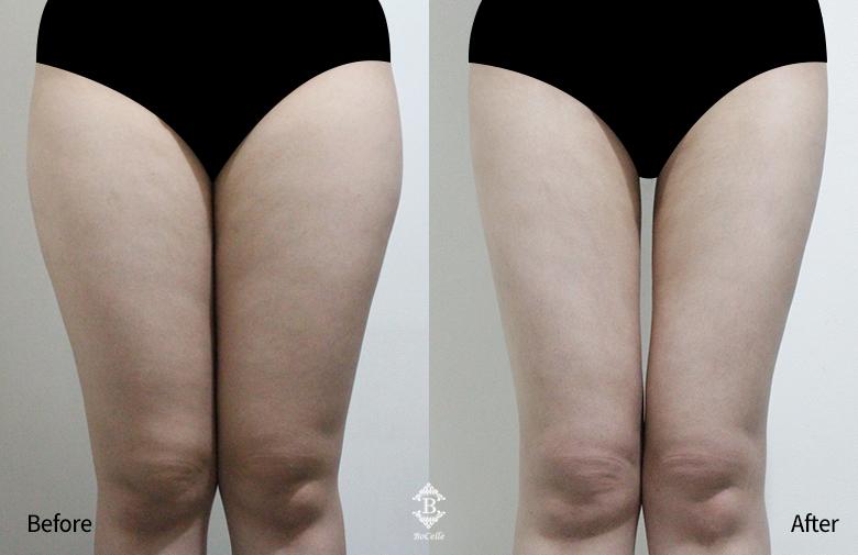 지방흡입(허벅지+엉덩이+무릎)