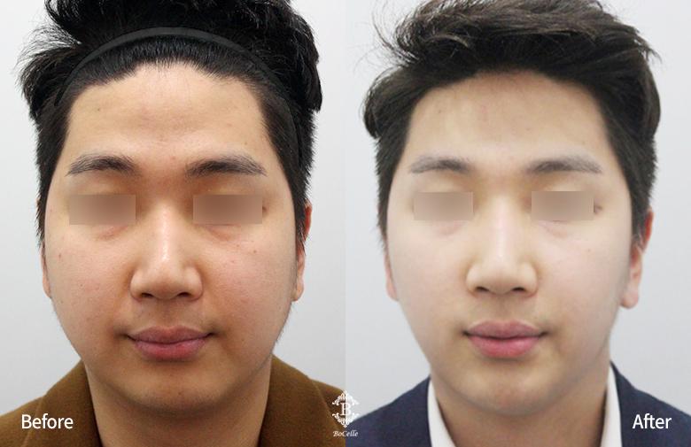 얼굴 지방흡입(양볼+이중턱)