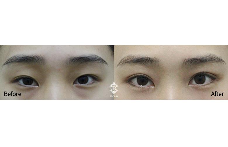 매몰법 + 눈매교정 + 듀얼트임